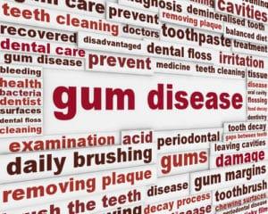 absolute gum disease