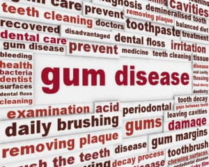 absolute gum disease